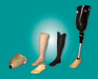 Brecon Knitting Mill,  Orthotic Prosthetic Stockinets